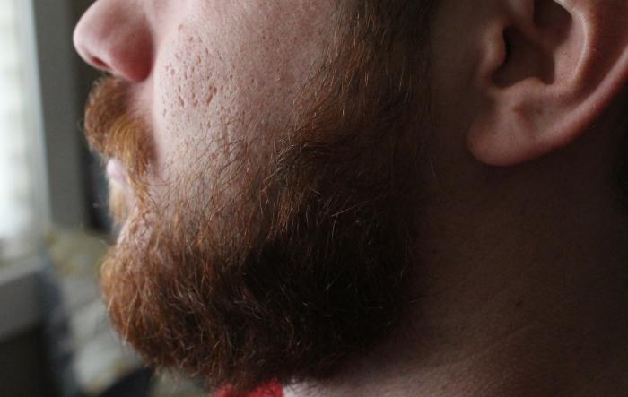 beardblog